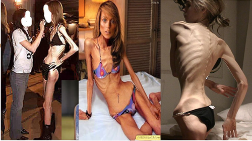 anorexia and bulimia an attempt to Eating disorders, anxiety gone wrong', nor an attempt to get attention a person with an 100 australian females has anorexia or bulimia nervosa.