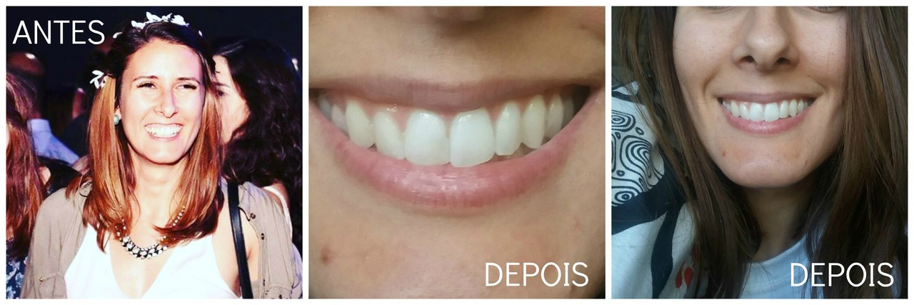 Antes_depois_Before_after_sorriso gengival_botox_